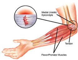 Reflexology Denver Reflexology For Tennis Elbow And